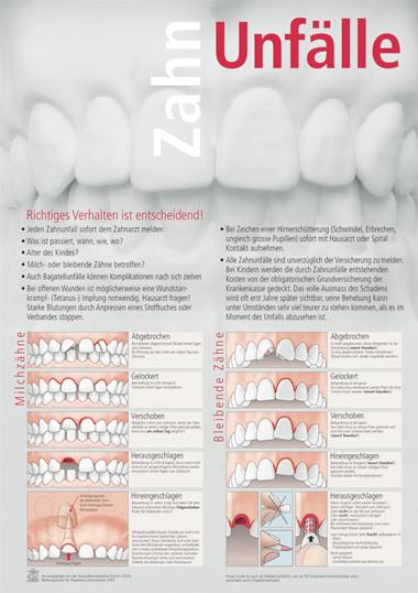Zahnunfälle